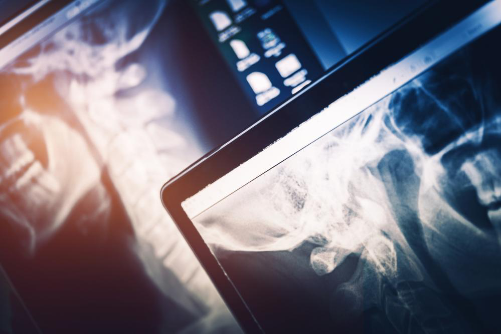PACS and Digital X Ray: Spearheading Healthcare Improvements