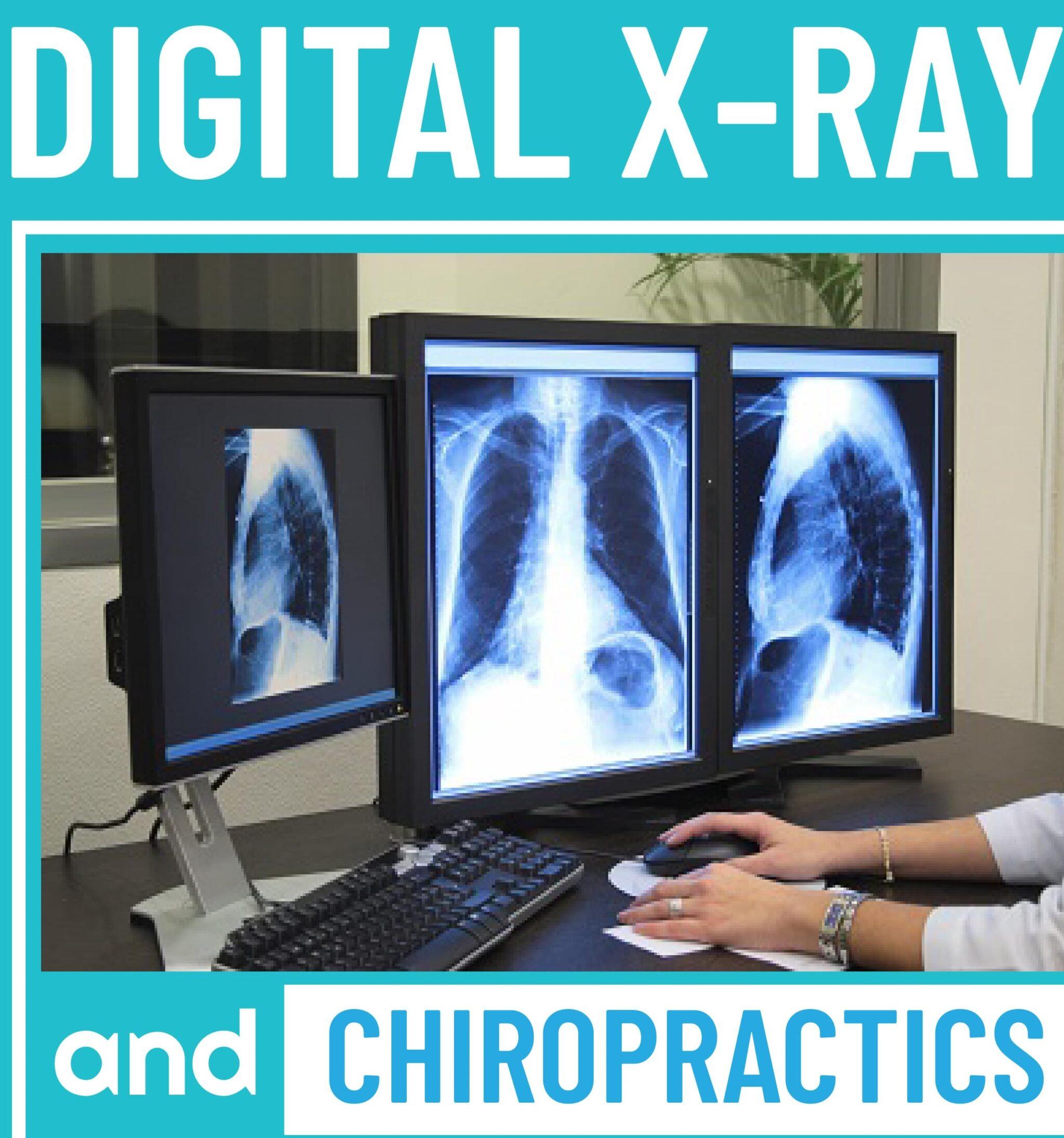 Digital X-Ray and Chiropractics
