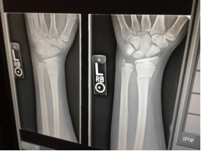 Technology in Urgent Care: Digital X-rays for Enhanced Diagnostic Imaging