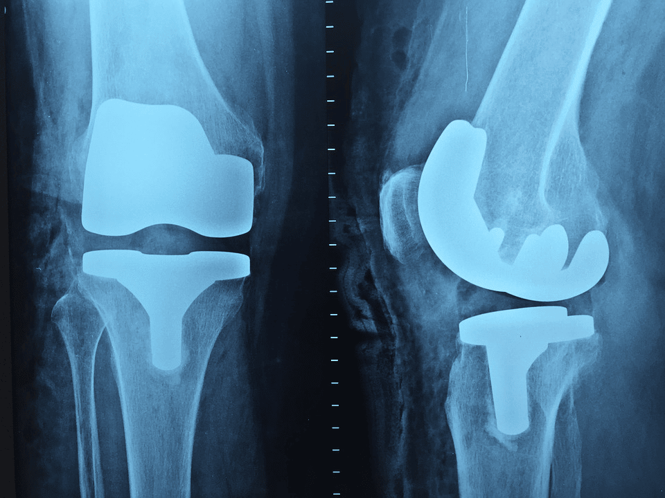 How On-site Digital X-rays Facilitate Prompt Orthopedic Care